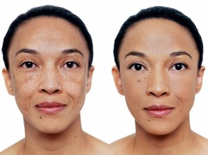 A-before-and-after-picture-of-a-woman-using-Vichy-Dermablend